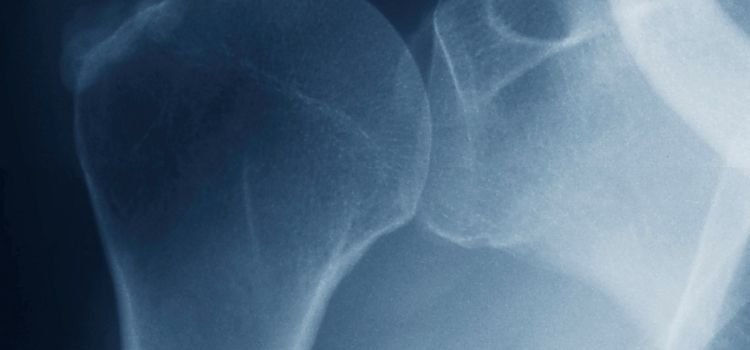 rotator cuff injury, rotator cuff, chiropractic for rotator cuff injury, zandi chiropractic